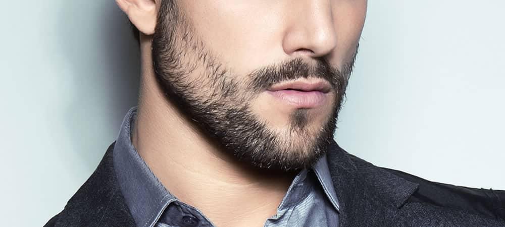 alopecie barbe