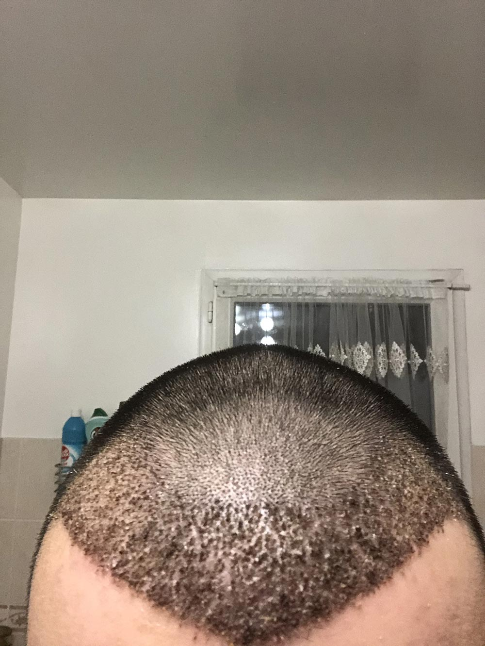croute cheveux apres greffe de cheveux