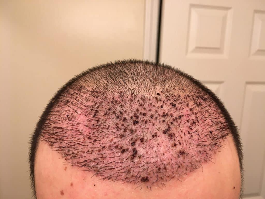 greffe de cheveux a l'etranger